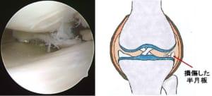 膝関節の痛みについて