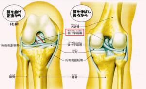 膝についてしりましょう(レントゲンとMRIの違い)